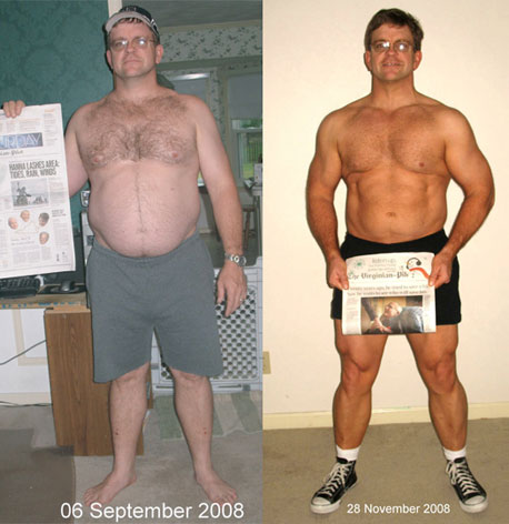 No weight loss with colon cancer picture 3
